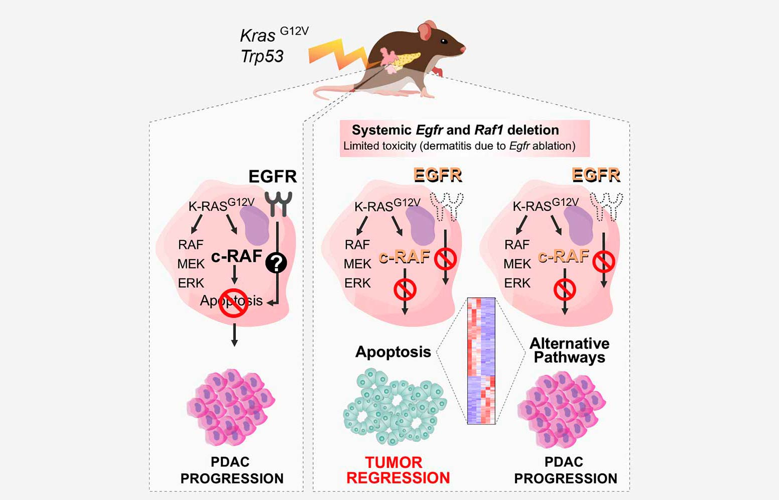 Complete Regression of Advanced Pancreatic Ductal Adenocarcinomas upon Combined Inhibition of EGFR and C-RAF